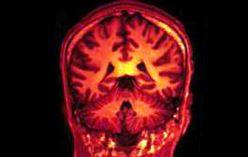 'Charismatic' brain